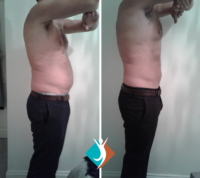 fat reduction in Addiscombe