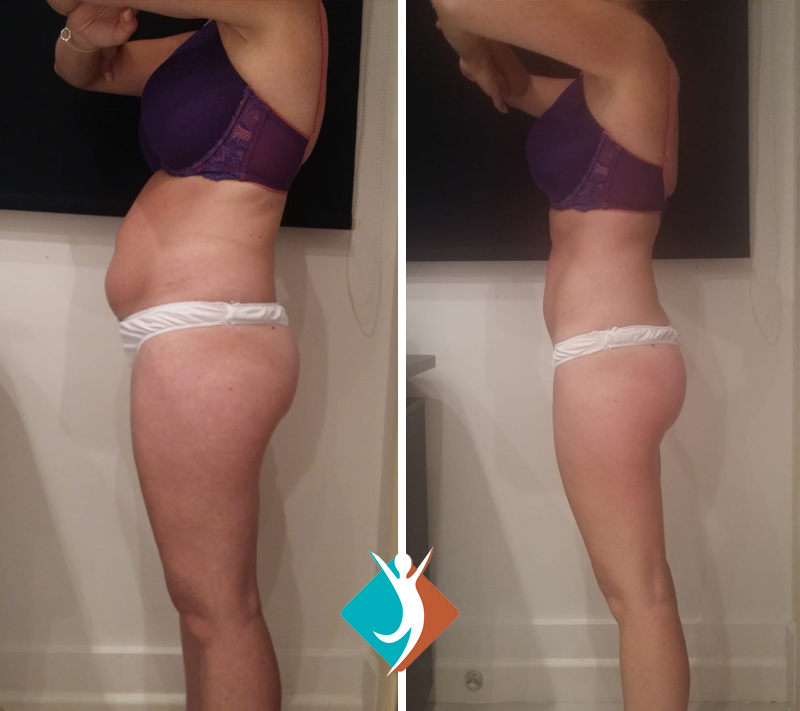Proven results with Shape and Tone Aesthetics - reduce body fat in Croydon