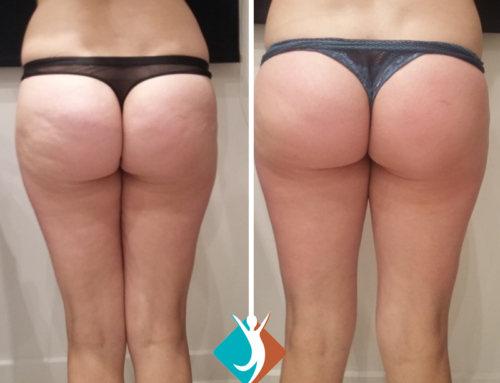 The Bottom line – Cellulite reduction