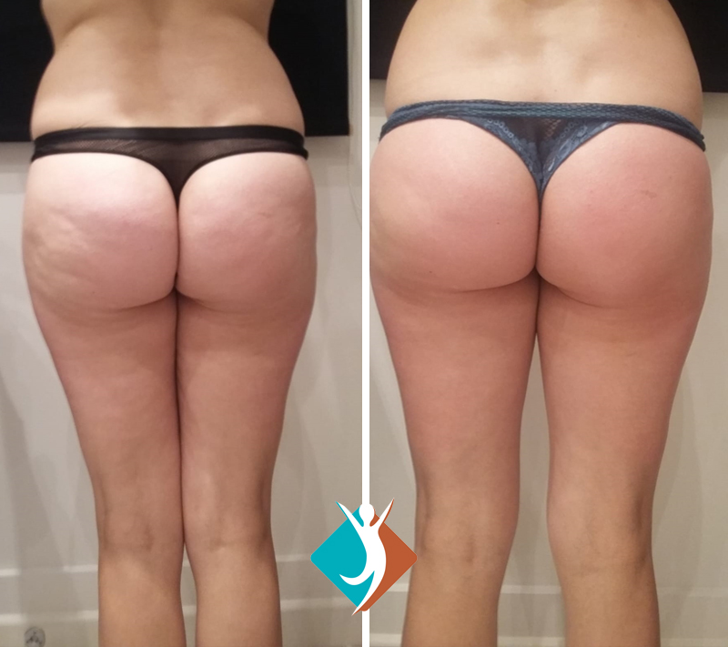 Non-invasive cellulite reduction in Croydon