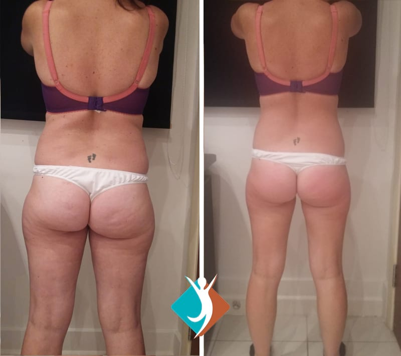 Cellulite treatment Thornton Heath