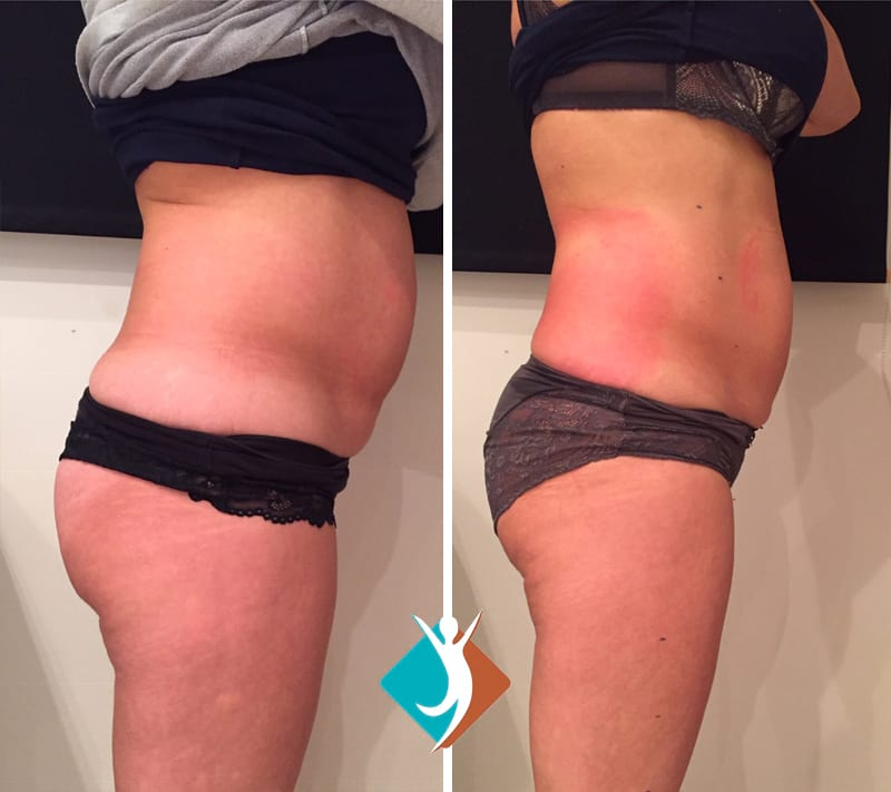 Non-invasive lipoform fat reduction in Croydon
